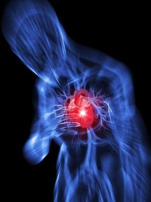 心筋梗塞のイラスト