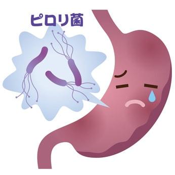 ピロリ菌によって胃が痛んでいるイラスト